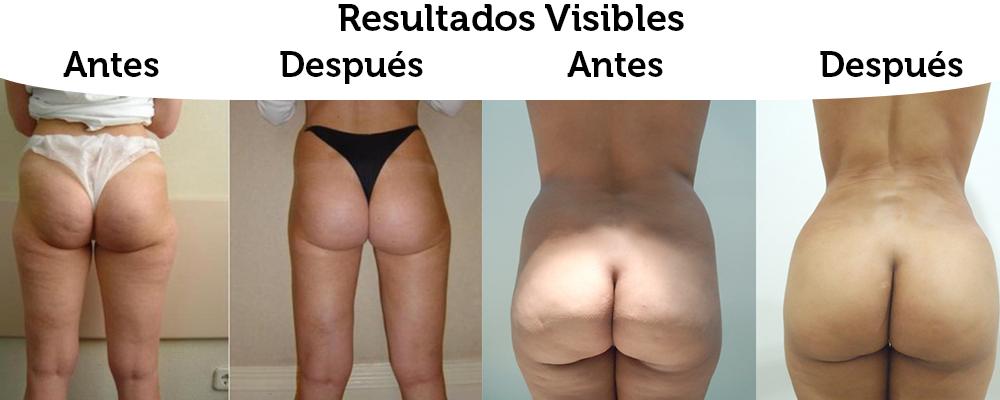Anydes